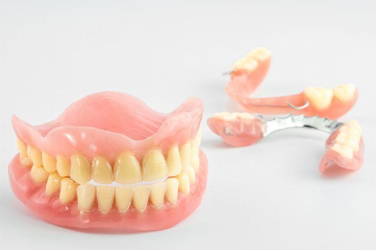 ぴったりフィットする入れ歯(義歯)の作製