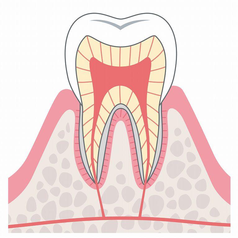 C0(初期虫歯)