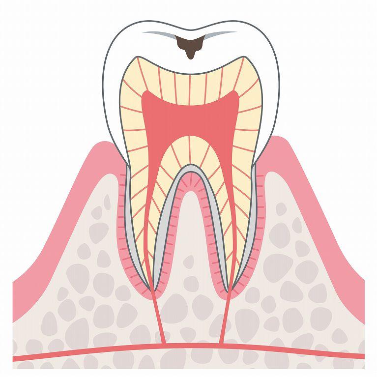 C1(エナメル質虫歯)