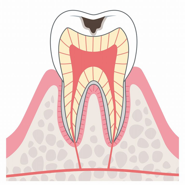 C2(象牙質虫歯)