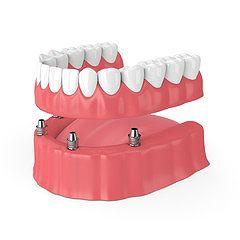 入れ歯を使ったインプラント治療(インプラントオーバーデンチャー)