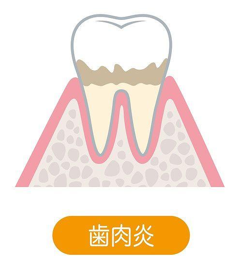 初期歯周病(歯肉炎)