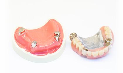 審美性高い入れ歯